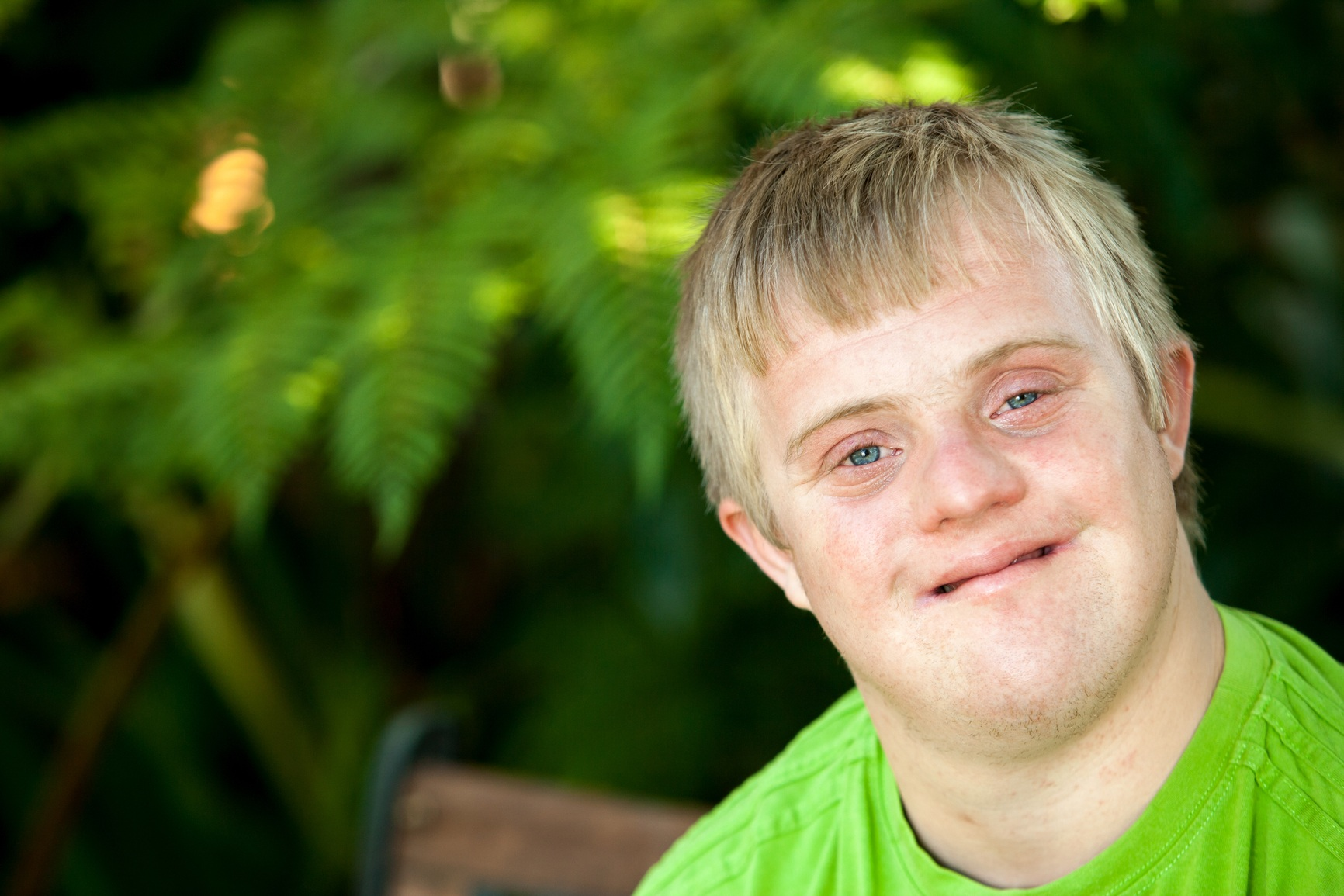 downs syndrome Shop for down syndrome on etsy, the place to express your creativity through the buying and selling of handmade and vintage goods.